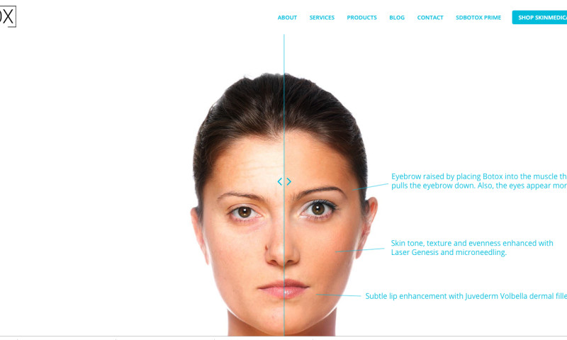 CNG Digital Marketing - SD Botox 350% Organic Search Growth