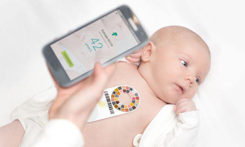 iLeaf Solutions - Healthcare App - Picterus - Jaundice Tracker